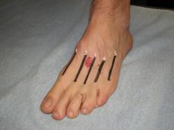 foot pain icd 9