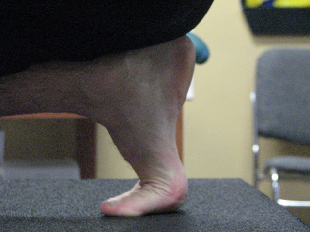 "When ""Achilles pain"" is not Achilles tendonitis 