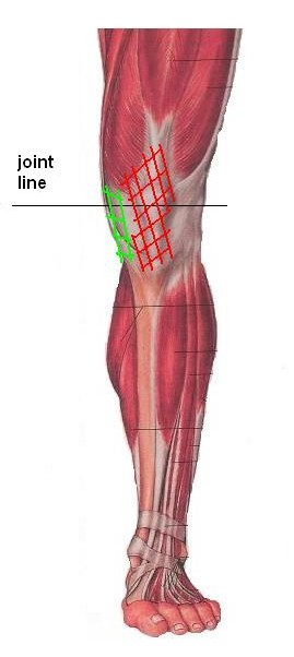 Knee Pain Part 3: Anterior And Medial Knee Pain » Anterior Knee Pain